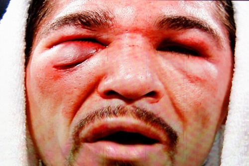 Antonio Margarito faces Manny Pacquiao